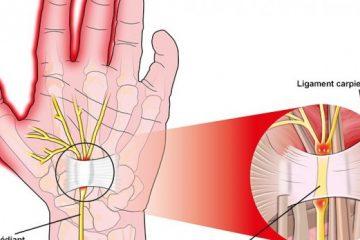 contre-le-syndrome-du-canal-carpien-voici-des-exercices-a-appliquer-sur-vos-mains-723x347_c