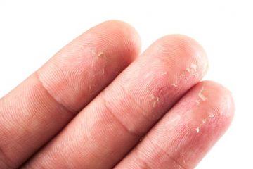 eczema-500x302