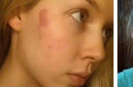 Elle-se-fait-opérer-au-laser-pour-retirer-cette-tache-de-naissance-mais-ce-qui-arrive-à-son-visage-9