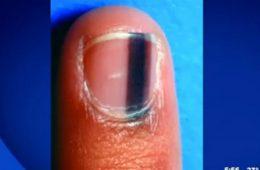 si-vous-avez-une-tache-noire-sous-votre-ongle-comme-ca-consultez-un-medecin