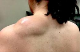 Ce qui sort de son dos après incision vous donnera des nausées !