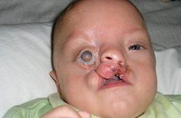 Il pèse 700 grammes à la naissance et est défiguré...9 ans plus tard, il arrive à impressionner tout le monde!