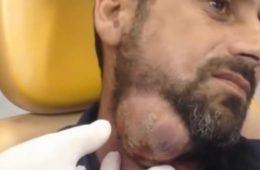 Il souffre de cette énorme bosse au cou...le médecin la perce et regardez bien ce qui sort de là!