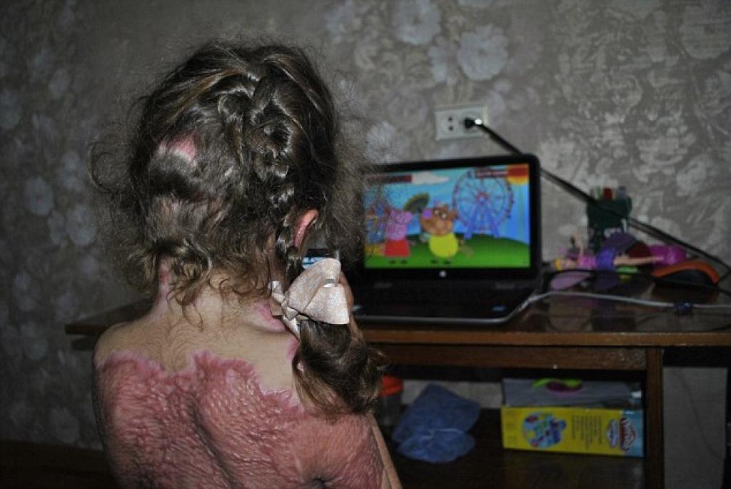 """Plusieurs enfants sont victimes d'un terrible """"jeu"""" qui sévit sur la toile...les conséquences sont désastreuses 1"""