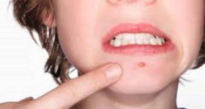 L'acné. Causes, origines et traitements