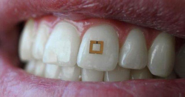 capteur dentaire