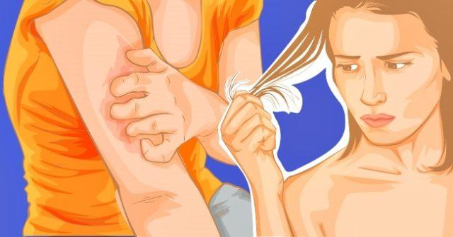 maladies auto-immunes